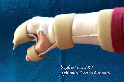 Blog - RightWristBrace1-2014